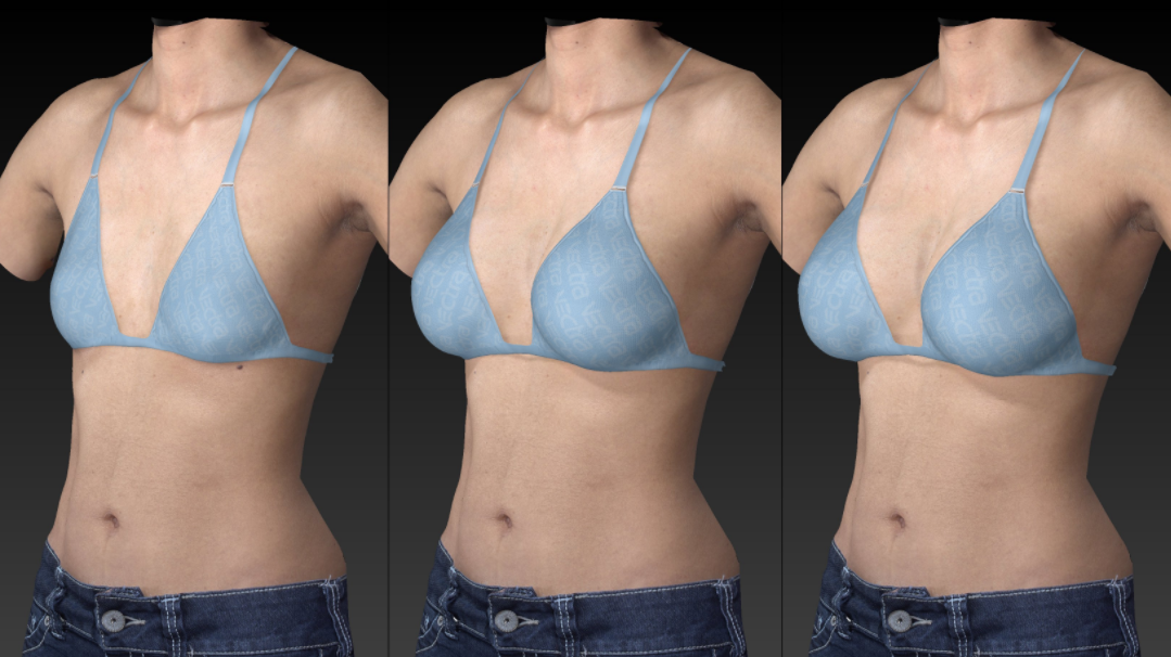 breast augmentation simulator