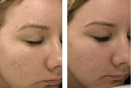 before and after micro pen treatments