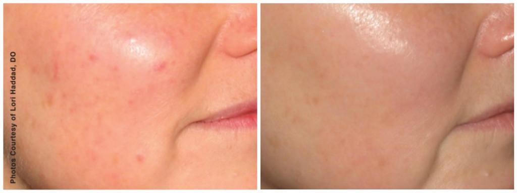 acne scar bbl