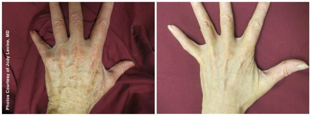 brown spots hands bbl