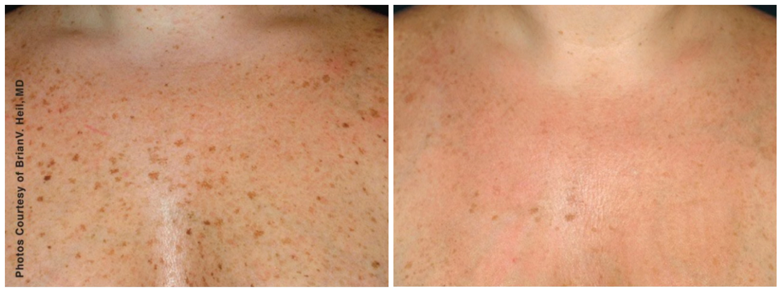 freckles bbl