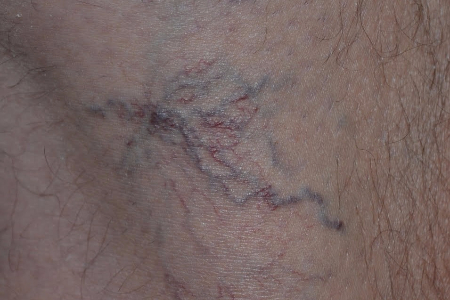 before Spider vein BBL treatment