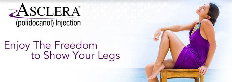 asclera leg vein treatment