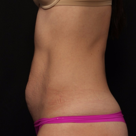 before tummy tuck, side view