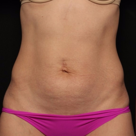 before tummy tuck, front view