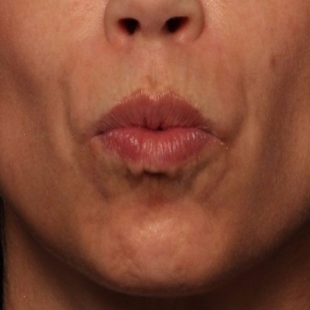 after BELOTERO and BOTOX to the upper lip lines (smoker's lines)