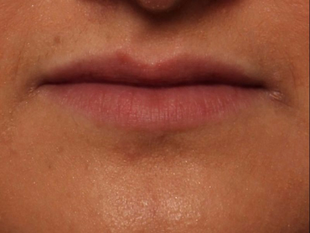 before juvederm to lips, front view