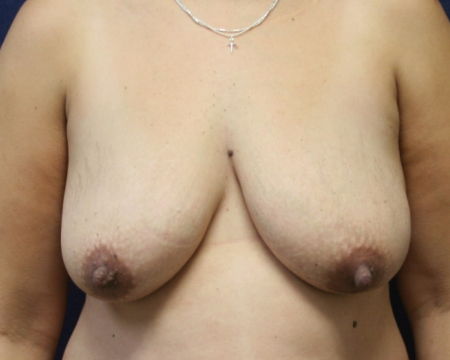 front, before Bilateral Breast Lift