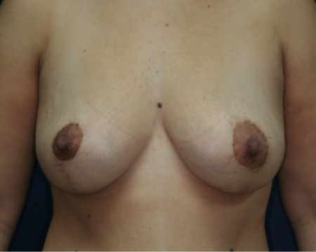 front, after Bilateral Breast Lift