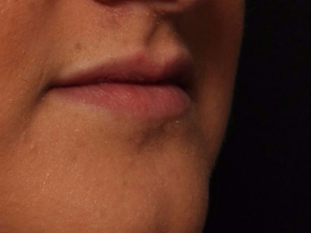 before juvederm to lips, side view