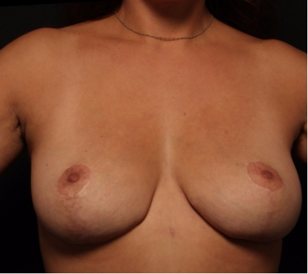 Bilateral Breast after, side