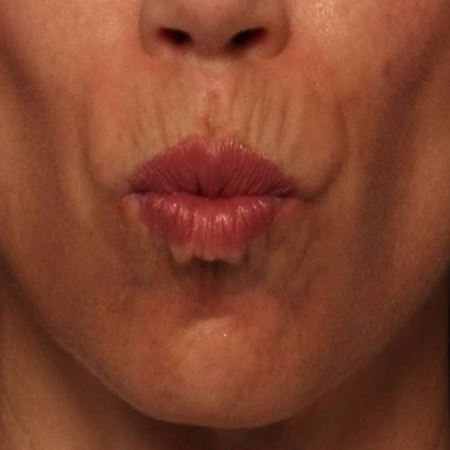 before BELOTERO and BOTOX to the upper lip lines (smoker's lines)