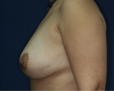 side, after Bilateral Breast Lift