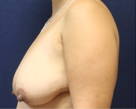 side, before Bilateral Breast Lift
