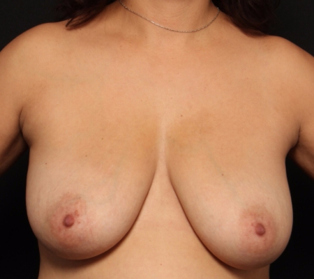 Bilateral Breast Lift after, front