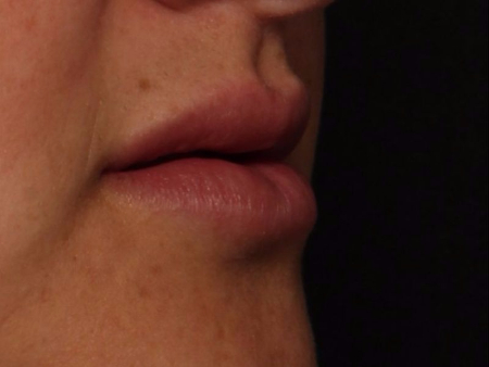 after juvederm to lips, side view