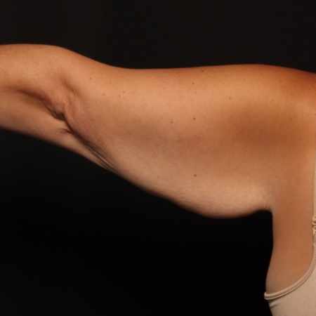 Brachioplasty, before - arm straight
