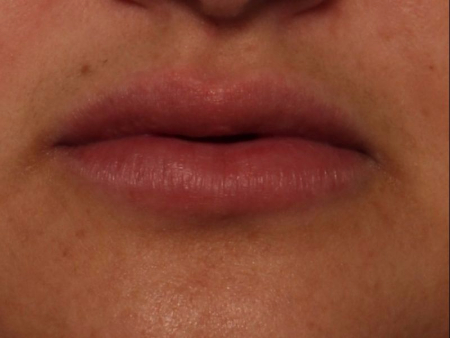 after juvederm to lips, front view
