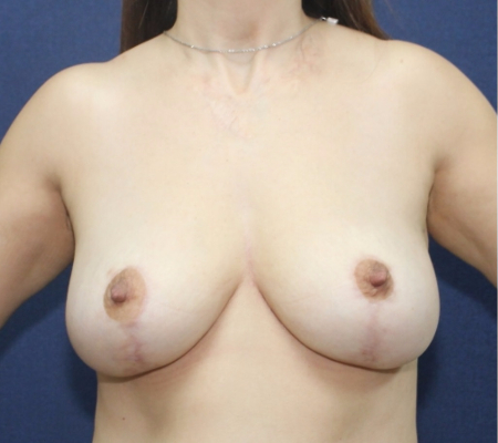 Bilateral Breast Lift after, side