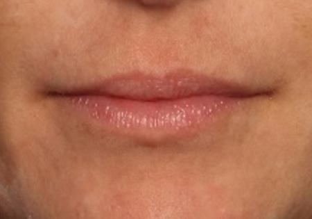 before lip fillers