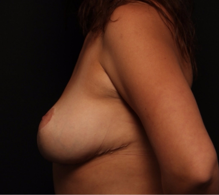 Bilateral Breast Lift, before, side