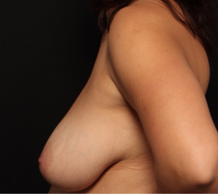 Bilateral Breast Lift, before -- front