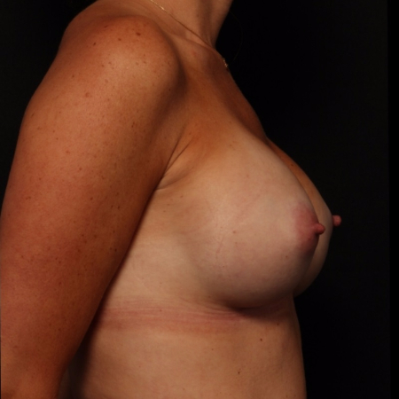 breast augmentation, before - side