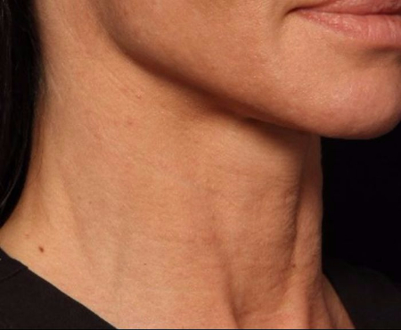 after juvederm injections to neck