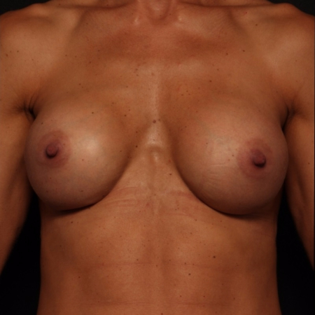 after silicone breast implants, front view