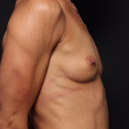 before silicone breast implants, side view