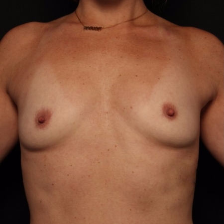 breast augmentation, before - front