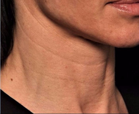 before juvederm injections to neck