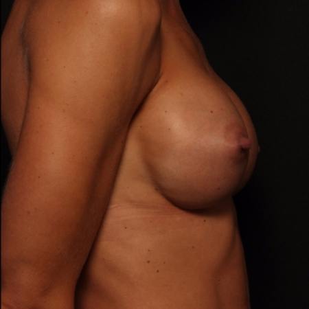 after silicone breast implants, side view