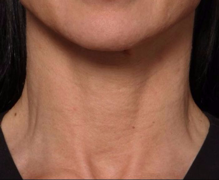after juvederm injections to neck (front view)
