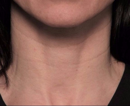 before juvederm injections to neck (front view)