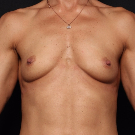 before silicone breast implants, front view