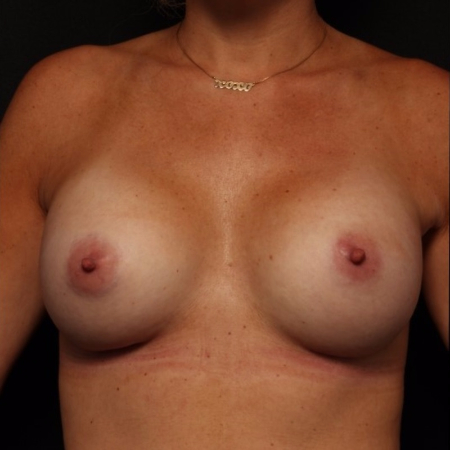 breast augmentation, after - front