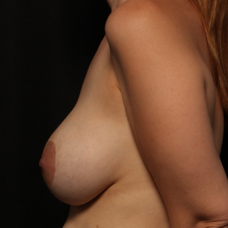 Breast Augmentation with silicone implants & breast lift, after (side)
