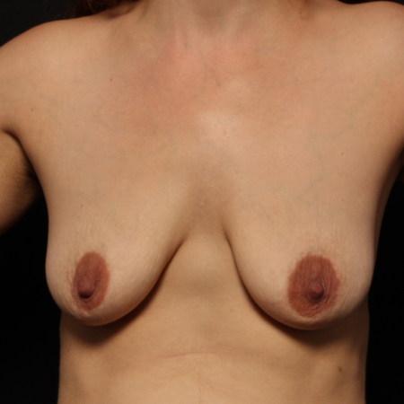 Breast Augmentation with silicone implants & breast lift, after (front)