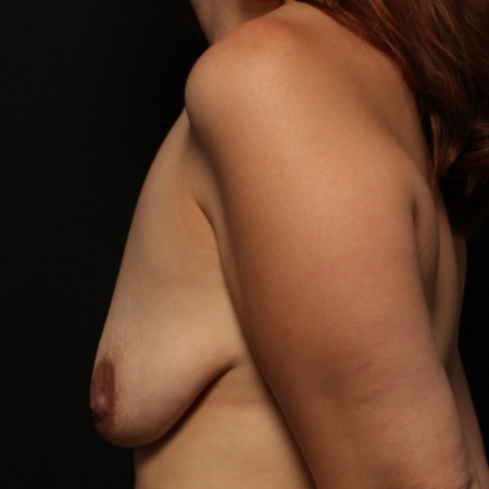 Breast Augmentation with silicone implants & breast lift, before (side)
