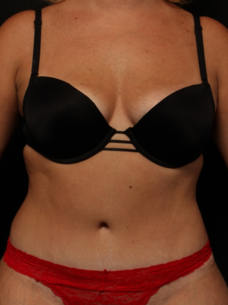 front view, after abdominoplasty