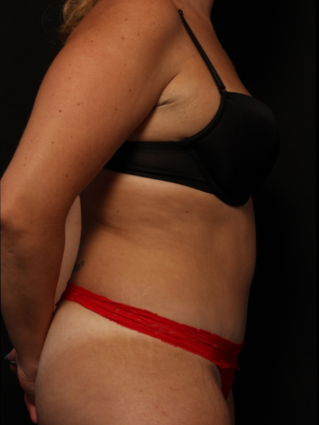 side view, after abdominoplasty