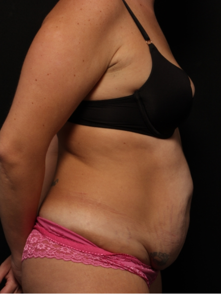 side view, before abdominoplasty