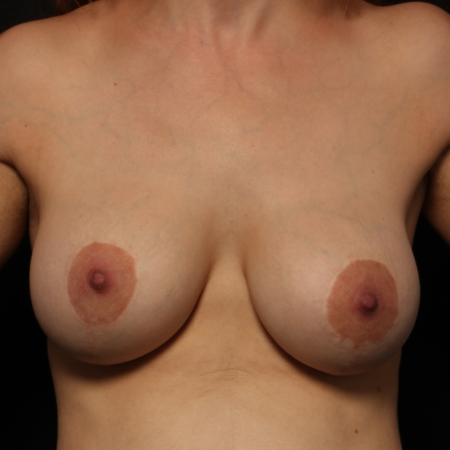 Breast Augmentation with silicone implants & breast lift, before (front)