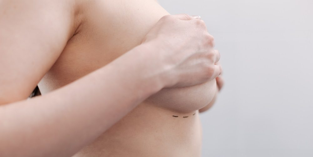 Breast Implant Complications: Capsular Contracture and Other Common Concerns