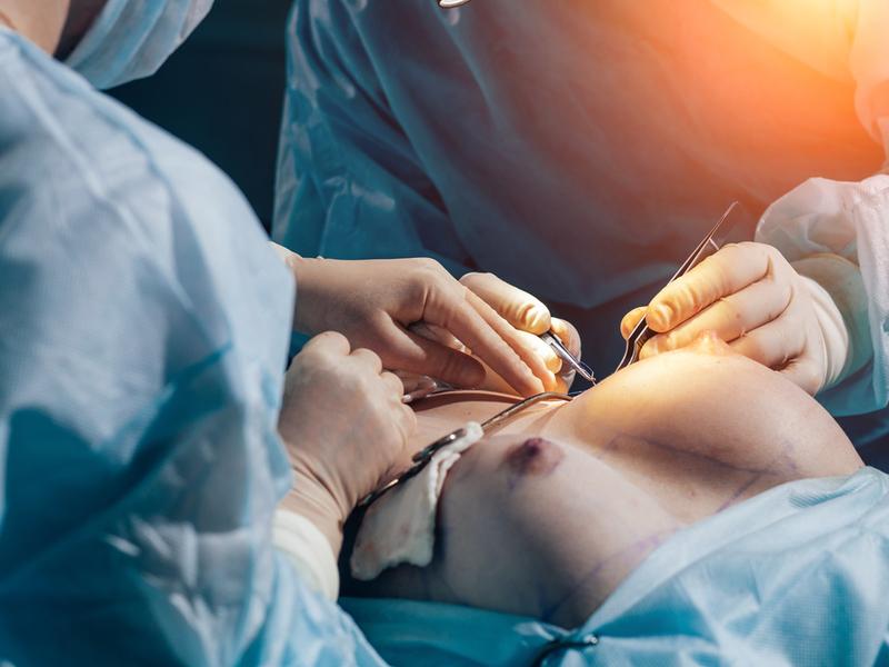 symmastia surgery