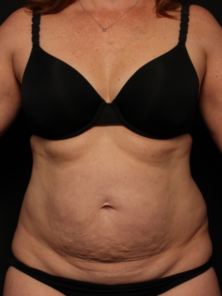 before abdominoplasty with lipo to the flanks, front view