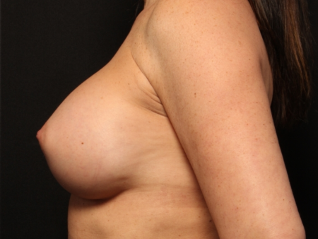 after silicone implants, side