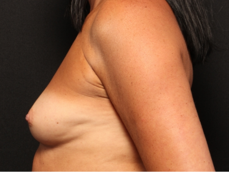 before silicone implants, side