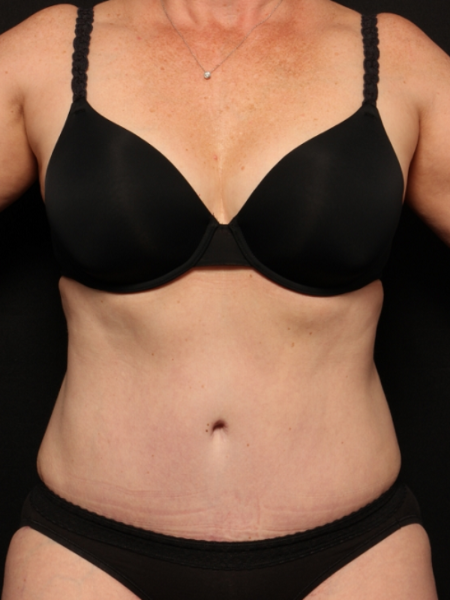 after abdominoplasty with lipo to the flanks, front view